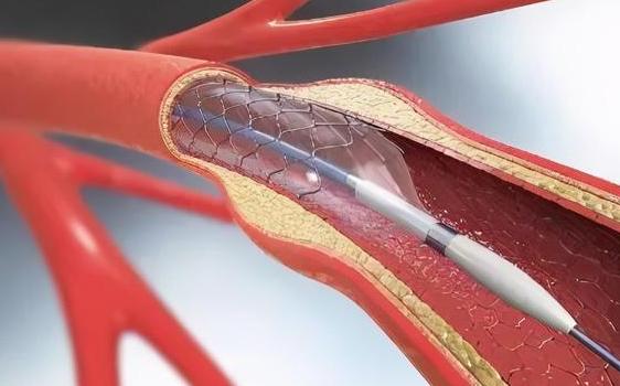 山西實施心臟支架集中帶量採購 均價從1.3萬元降至700